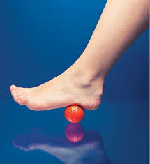 plantar fasciitis treatment - MyBowenTherapy